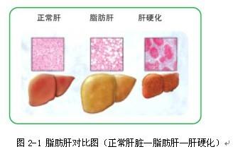 脂肪肝对比图